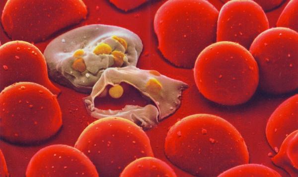Malaria in blood