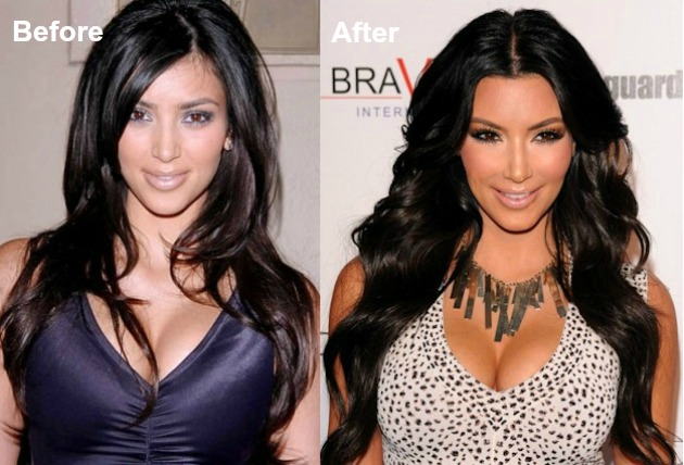 16 Famous Celebs Who Opted For Plastic Surgery And Regretted