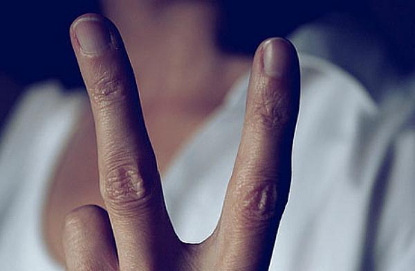two finger test