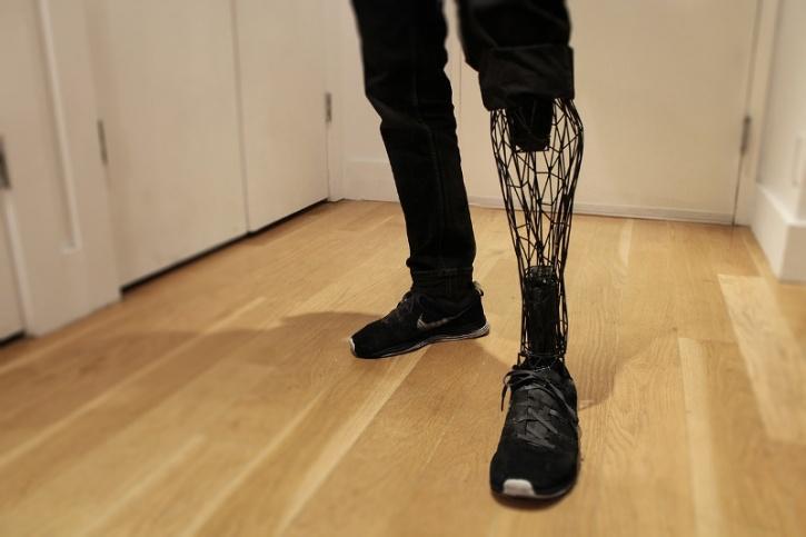 3D Prosthetic Limb