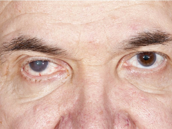 Can Cataract Surgery Be Done After LASIK?