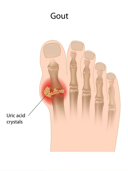 Foods You Must Avoid With Gout When You Are On A Uric Acid Diet