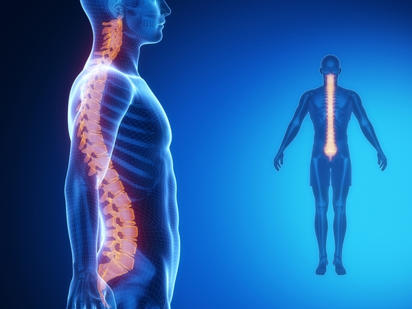 Lording It Out: How To Manage Hyperlordosis