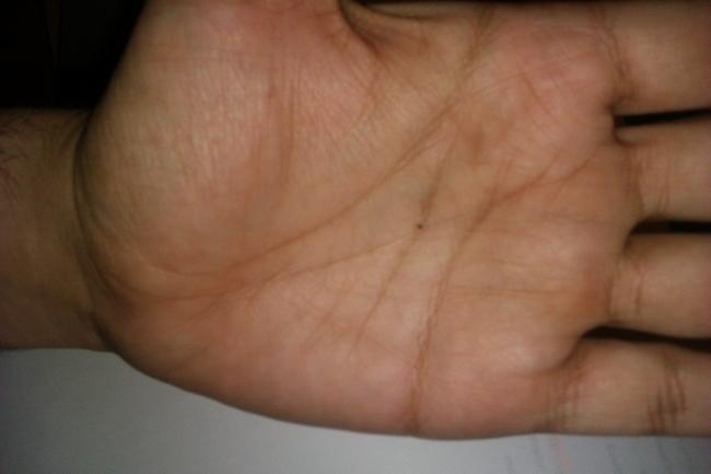 spot on hands