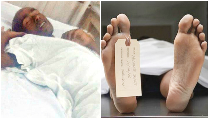 Police Ask A Doctor To Declare Homeless Man Dead, Guy Wakes Up Moments Before Post Mortem #WakingDead