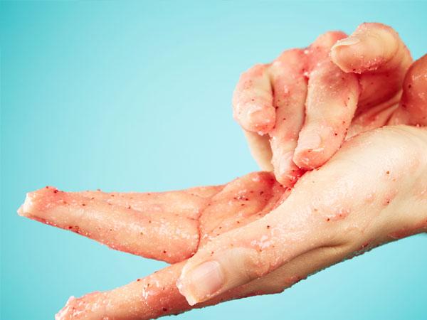 How To Whiten Dark  Hands Naturally