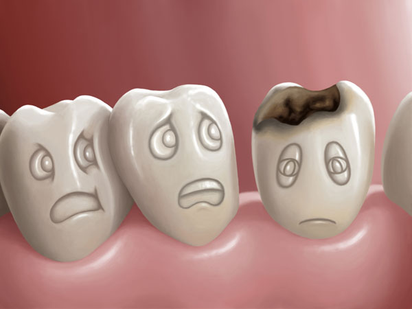 Oil Pulling + 6 Home Remedies To Heal Dental Cavity Naturally