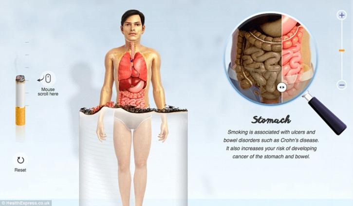 Smoking Health