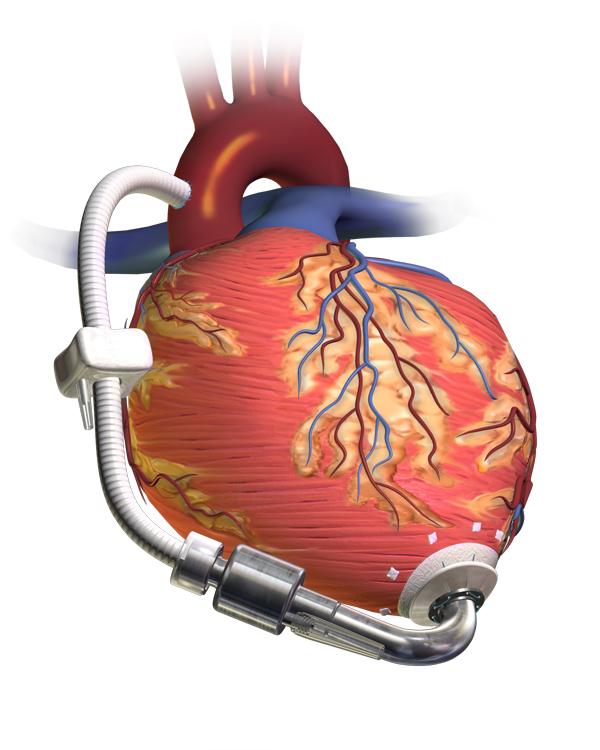 ISRO Heart Assist Device