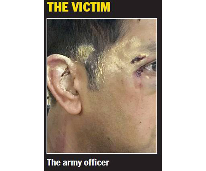 Army Officer Attacked By Bengaluru Locals In Road Rage For Being A