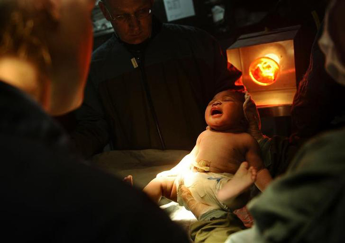 Pune Doctors Operate On Baby