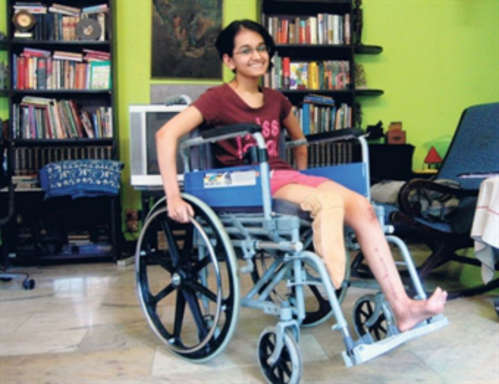 Woman Passenger Forced To Remove Prosthetic Leg For Scanning At Mumbai Airport