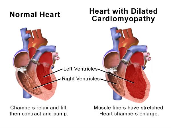 (Dilated Cardiomyopathy,
