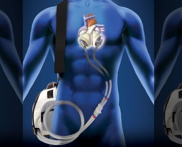 syncardia device