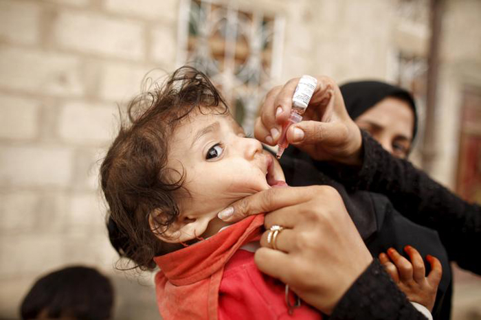 Polio Virus Resurfaces In Hyderabad After 5 Years