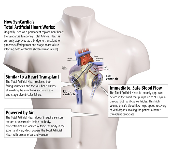 syncardia