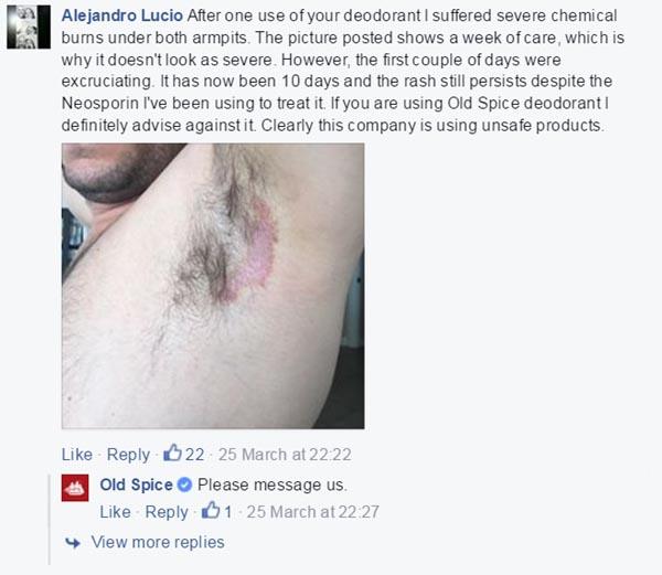 Old Spice Deodorant Burn Lawsuit