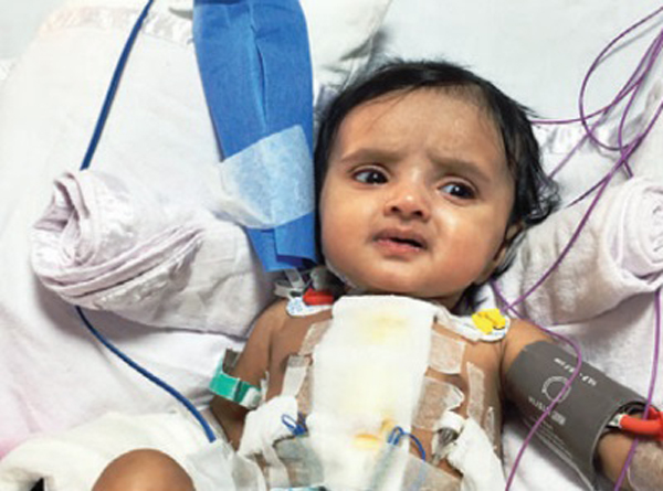 Four-Year-Old Mumbai Girl Survives Twenty Heart Attacks In Two Month