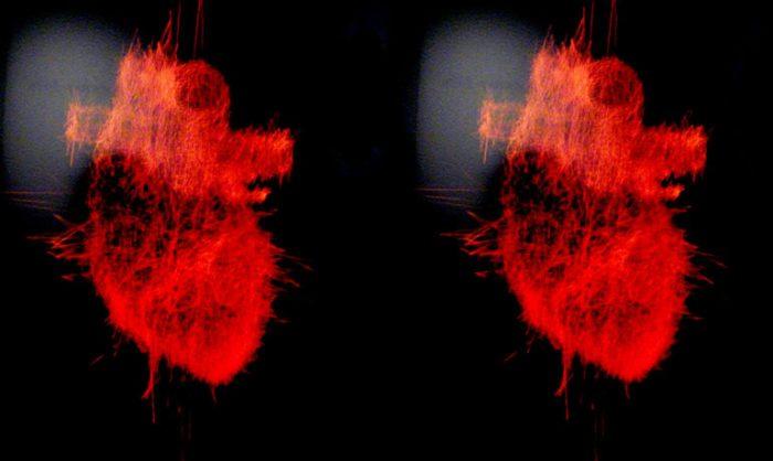 Virtual 3D Heart