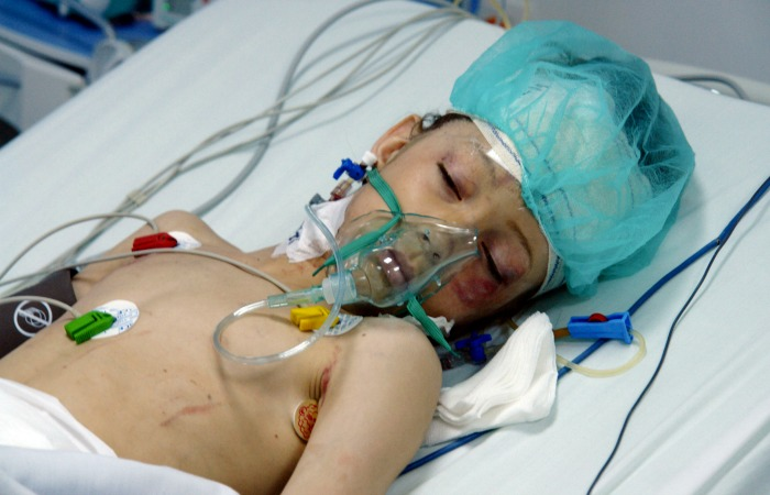 8 Year Old Boy Dies After Mistakenly Being Given Nitrous Oxide Instead Of Oxygen