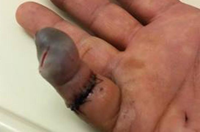 Cutting Finger