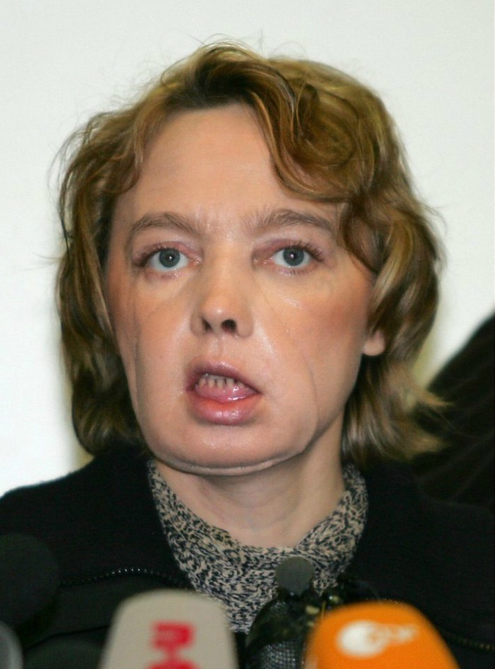 Isabelle Dinoire