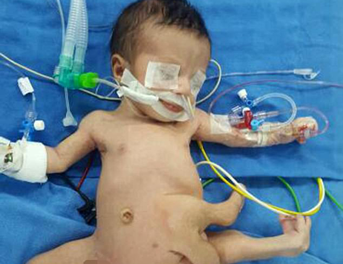 Baby With Eight Limbs