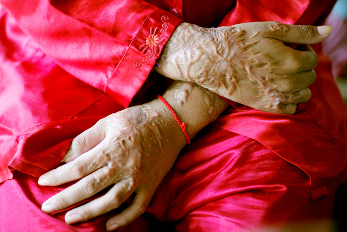 Triple Talaq Woman Attacked With Acid