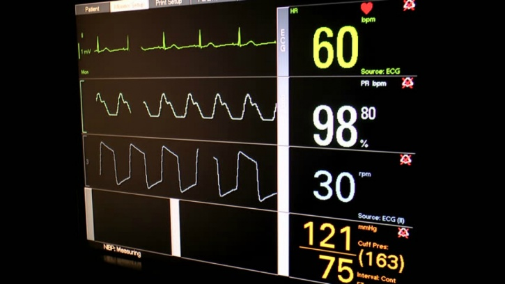 Activity trackers versus electrocardiogram results