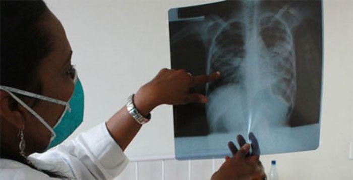 TB Treatment india