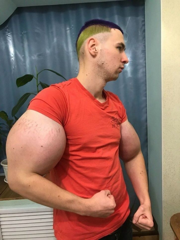 Kirill Tereshin, The 'Russian Popeye' Faces Risk Of Having His Chemical-Filled Arms Amputated