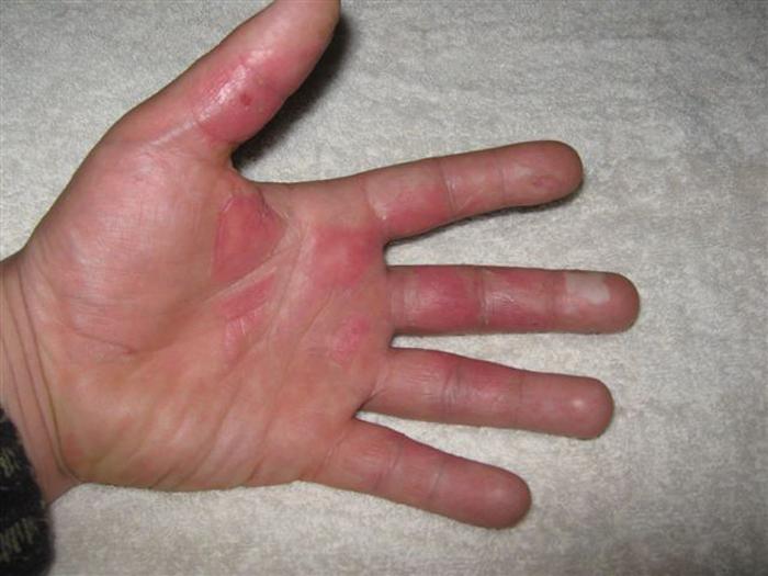 dip hands in hot oil