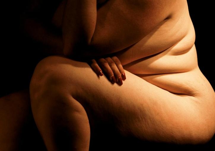 BMI over 30