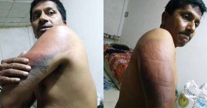 Mumbai man thrashed by boss in Mozambique, Sushma Swaraj steps in