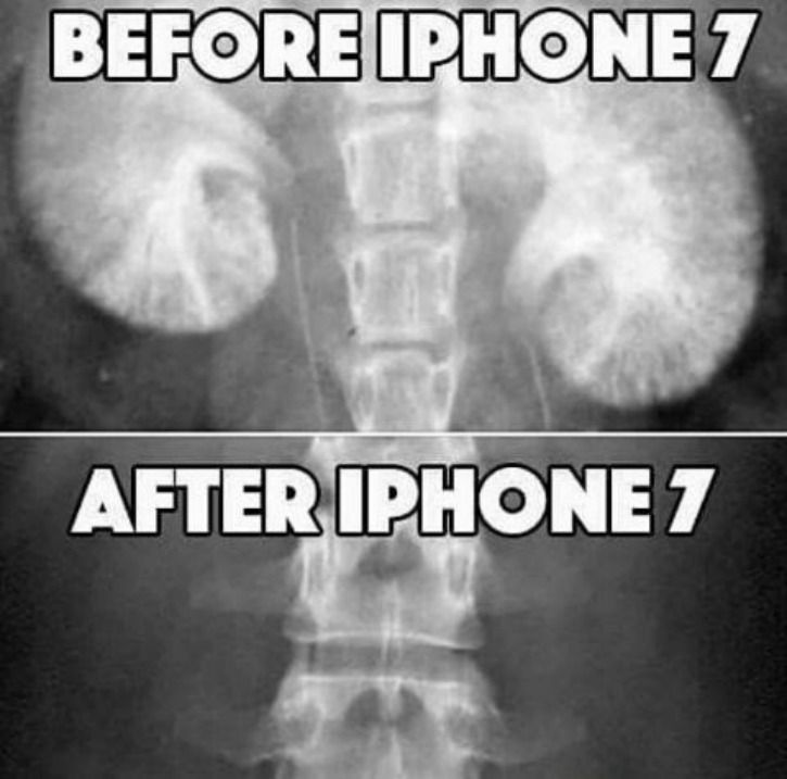 buying an iPhone is like selling a kidney