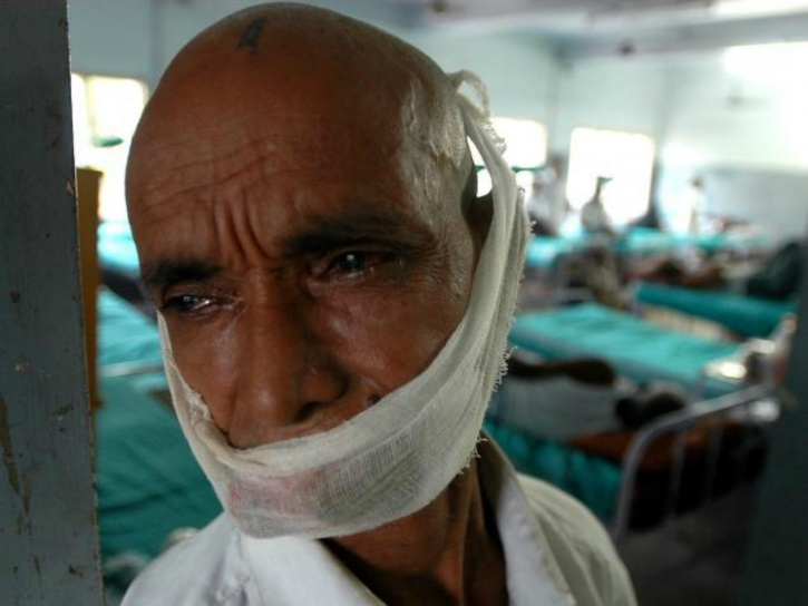 by 2020 India may have an estimated 1.73 million new cases of cancer and over 880,000 cancer deaths