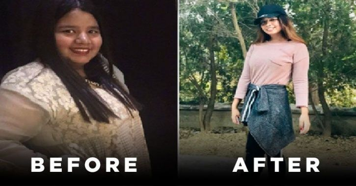 She Lost 42 Kilos In 6 months, Even After Maintaining Ice-Cream And Pani Puri In Her Diet!