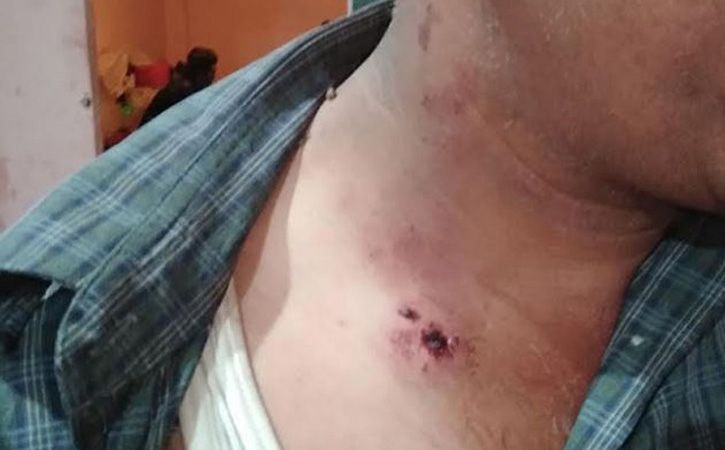 Tourists Attacked In Kashmir At Multiple Locations