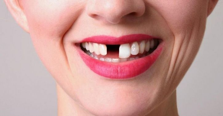 Lover Forces Woman To Remove 2 Teeth To Look Ugly
