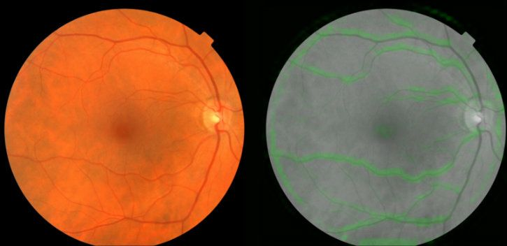 The retina scans being assessed by Google