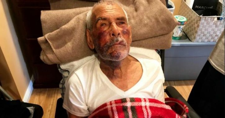 Racism Hits Peak: 91-Year-Old Man Thrashed With Brick, Asked To Go Back To Mexico