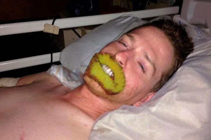 This Man Who Lost His Limbs And Lips Gets A New Set Of Lips In A First Of Its Kind Surgery