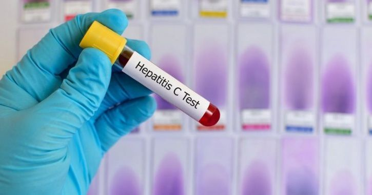 World Hepatitis Day: Hepatitis C Is 83% More Prevalent In North India, Here's Everything About It