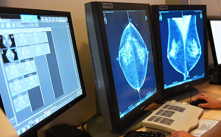 Breast Cancer Patients Can Skip Chemotherapy