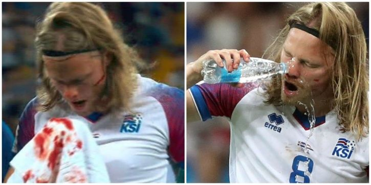 Iceland players are tough