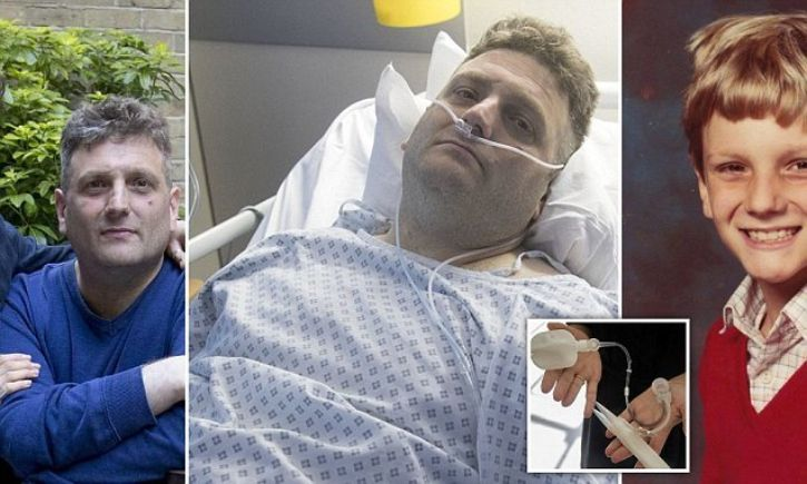 This Guy Is About To Have Sex For The First Time In His Life Using His £50,000 'Bionic Penis