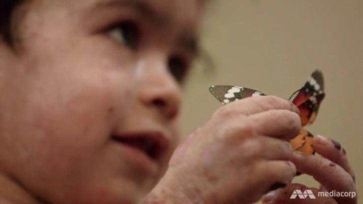 'Butterfly Children' Are Born With The Most Gruesome Disease You've Probably Never Heard Of