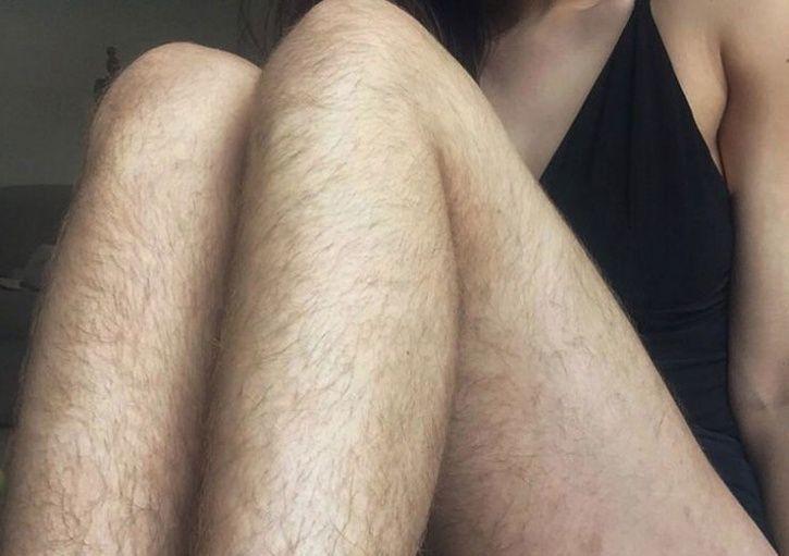 Excessive Body Hair