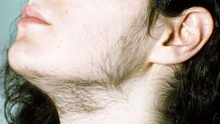 women body hair