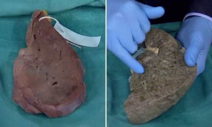 This Shocking Video Reveals How Alcohol Can Wreck A Healthy Liver